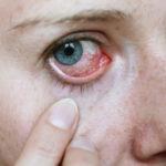 Как бороться с аллергией на пыль